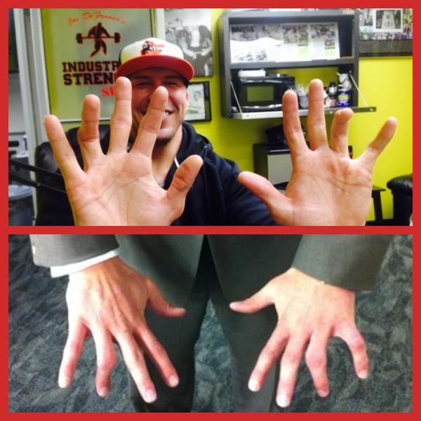 Dave Diehl fingers