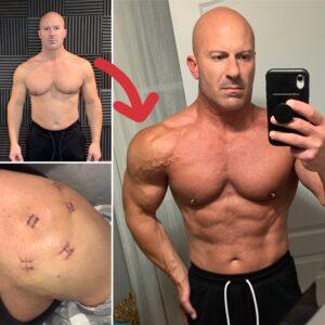 How I ReBuilt My Left Shoulder, New Garage Gym Update & More!